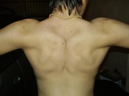 my espalda